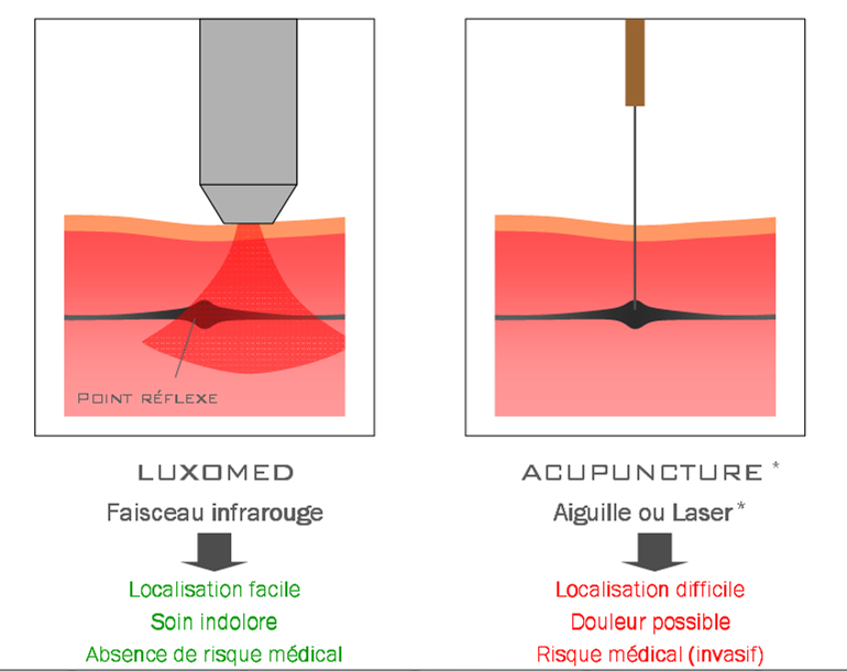 La difference entre la luxopuncture et l'acupuncture